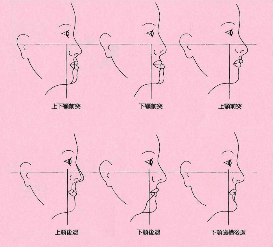 顎顔面の変形